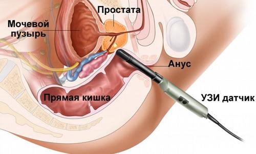 article Shema-TRUZI-prostaty